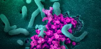 Virus Corona atau SARS-CoV-2 (NIAID / Creative Commons)