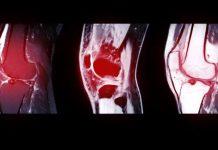 Seperti ini kondisi lutut yang mengalami cedera ACL. (Foto: .emc.id)