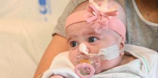 Bayi Naiara setelah transplantasi jantung di rumah sakit Gregorio Maranno, dekat Madrid, Spanyol. (Sumber: Elpais)