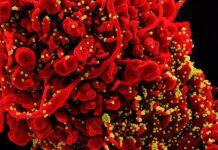 Mikrograf elektron pemindaian berwarna dari sel (merah) yang terinfeksi partikel virus SARS-COV-2 (kuning). (Kredit: NIAID)