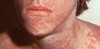 Foto ilustrasi cacar air (chickenpox). Pusat Pengendalian dan Pencegahan Penyakit (CDC) Amerika Serikat mengungkapkan bahwa virus corona varian Delta memiliki kecepatan menular sama seperti cacar air. (Foto dari TheHealthSite.com)