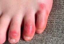 "Radang pada jari kaki yang diistilahkan dengan ""Covid toe"" disebut merupakan imbas reaksi berlebihan antibodi terhadap virus corona. (Foto dari Business Insider)"